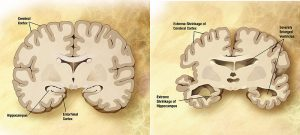 Normal and Alzheimer's brains compared.