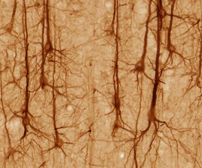 Pyramidal neurons. Source: Magnus Manske http://bit.ly/1gUo6GM
