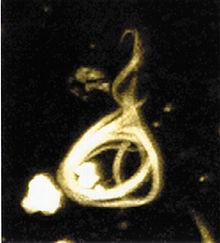 Neurofibrillary tangle.