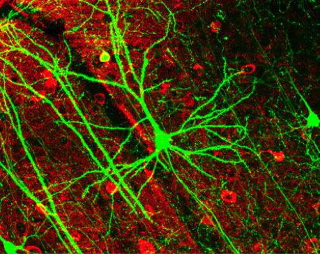 Pyramidal neurons. Source: Retama. http://bit.ly/18j9iOP