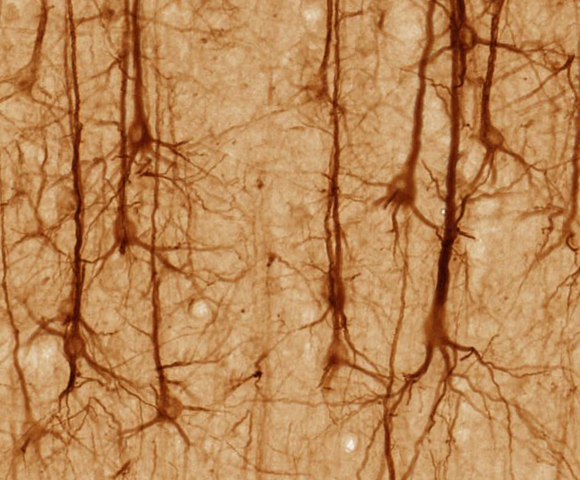 Pyramidal neurons. Source: Magnus Manske http://bit.ly/1gUo6GM